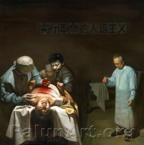 הציור Organ Crim מתאר קצירת איברים בכפייה ממתרגלת פאלון גונג בעודה בחיים (צויר על ידי, Xiqiang Dong 2007, שמן על קנבס)